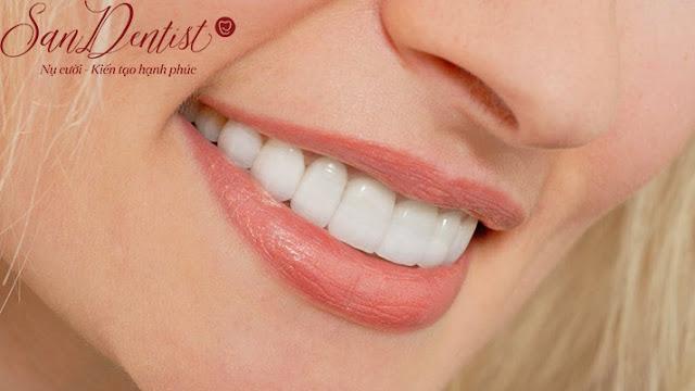 Review phủ răng sứ chất lượng như thế nào tại Sandentist