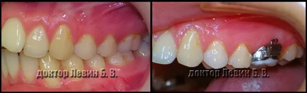 ортодонтические коронки
