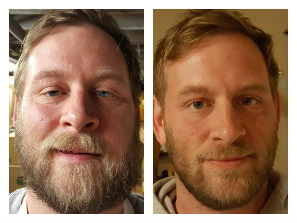 10 Foto Perbedaan Wajah Orang, Ketika Berhenti Minum Alkohol