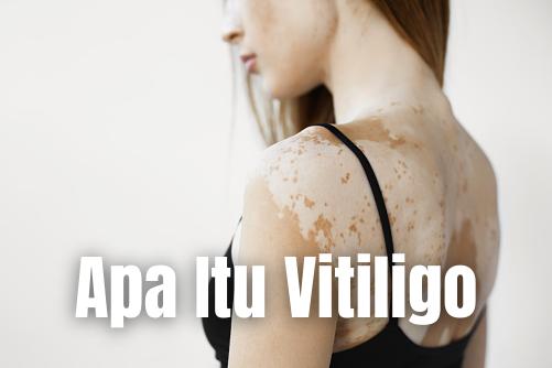 "Apa Itu Vitiligo : Pengertian, Tanda dan Gejala, Penyebab, Faktor Risiko Pengertian Vitiligo Vitiligo adalah kondisi kulit yang sering terjadi, yang melibatkan pigmentasi (warna) hilang pada kulit. Warna hilang pada area-area tertentu, seringnya pada punggung tangan, wajah, dan ketiak.   Penyakit ini tidak mematikan dan tidak dapat disembuhkan, namun beberapa warna kulit pada wajah dan leher dapat kembali. Kadang-kadang penyakit ini berhubungan dengan penyakit lain seperti penyakit tiroid.  Tanda dan Gejala Vitiligo Perubahan ini tidak dapat dirasakan dengan jari. Vitiligo tidak nyeri ataupun gatal. Ukuran vitiligo bervariasi dan dapat mencapat 1 inchi. Area yang kehilangan pigmen akan menyebar ke area yang lebih luas dengan bentuk tidak teratur.   Vitiligo sering terjadi pada kedua sisi tubuh di sekitar tempat yang sama. Kadang-kadang rambut di area tersebut juga akan kehilangan pigmen.  Penyebab Vitiligo Penyebabnya tidak diketahui. Vitiligo adalah hasil dari hilangnya sel di kulit yang disebut melanosit yang menghasilkan melanin, pigmen penentu warna rambut. Vitiligo bukan kanker dan tidak menular. Hal ini bisa didapat dari keluarga.  Faktor Risiko Vitiligo Faktor risiko dari vitiligo adalah sebagai berikut : Faktor genetik: vitiligo bisa didapat dari keluarga; orang dengan riwayat keluarga vitiligo, atau jika uban muncul dini sering berisiko lebih tinggi vitiligo Faktor risiko seperti penyakit autoimun, seperti tiroiditis Hashimoto autoimun  Nah itu dia bahasan dari apa itu penyakit Vitiligo pada tubuh manusia. Melalui bahasan di atas bisa diketahui mengenai pengertian, tanda dan gejala, penyebab, dan faktor risiko dari penyakit Vitiligo. Mungkin hanya itu yang bisa disampaikan di dalam artikel ini, mohon maaf bila terjadi kesalahan di dalam penulisan, dan terimakasih telah membaca artikel ini.""Gob Bless and Protect Us"""