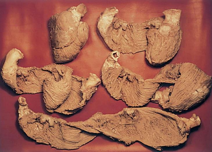 b6618ea84f5c1 imagem 1  Revista Española de Cardiologia 2005  58(6)  759-60 imagem 2   Unfolding the Muscular Anatomy of the Heart (F Torrente Guasp)