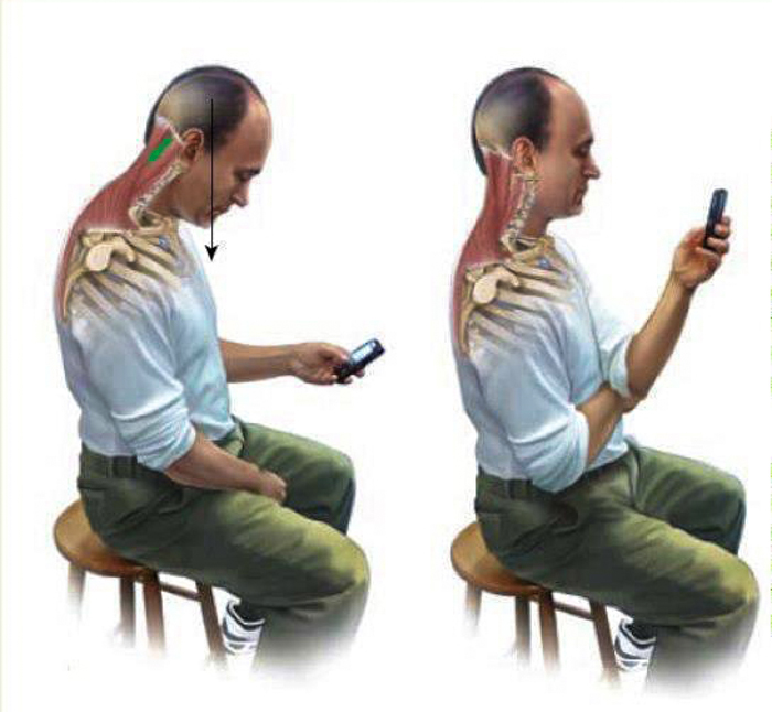 The Upper Cervical Blog: Forward Head Posture And Why It's ...