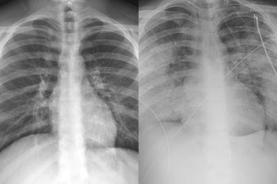 Rokok elektrik merusak dan berbahaya bagi paru-paru