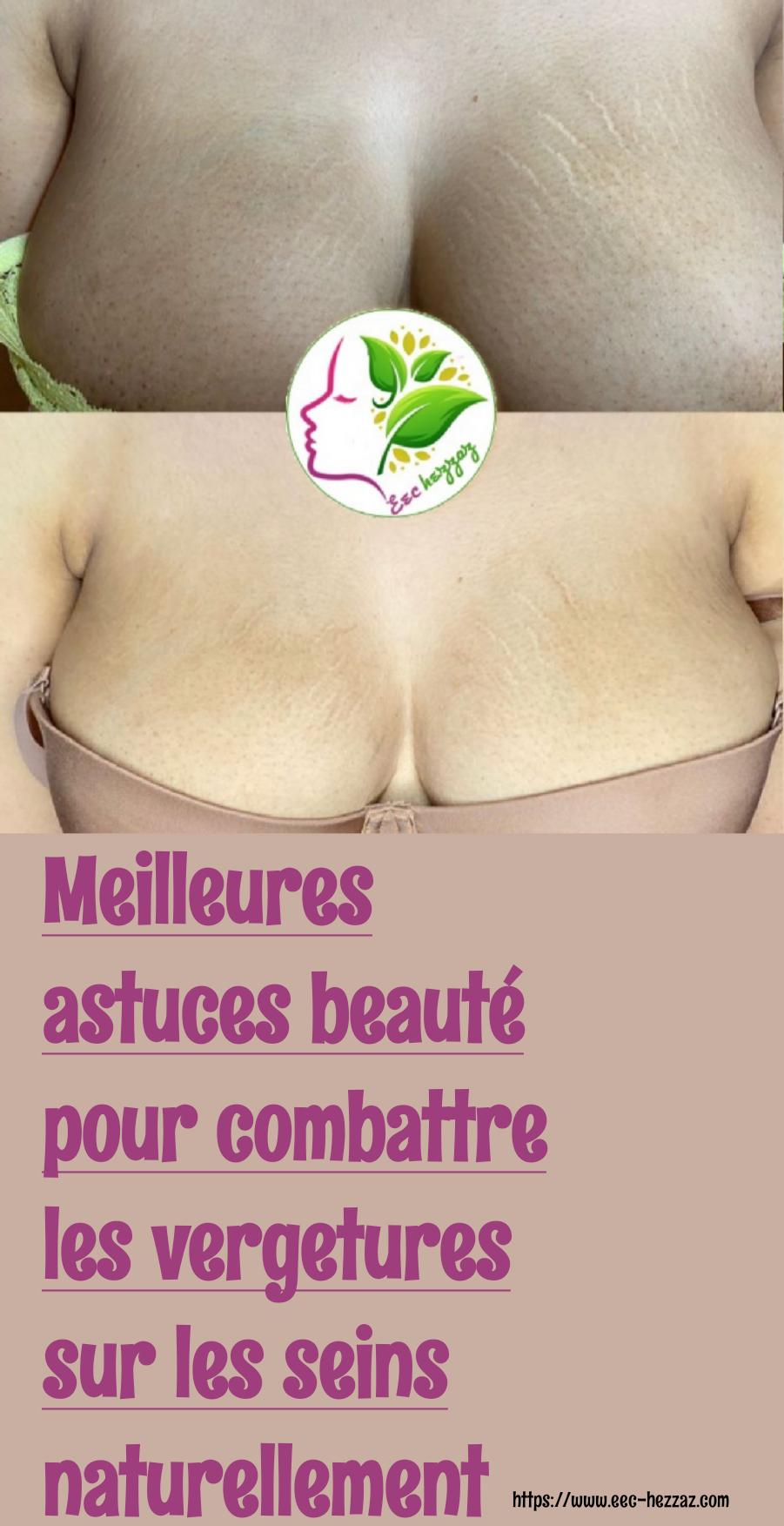 Meilleures astuces beauté pour combattre les vergetures sur les seins naturellement
