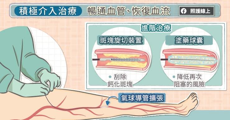 積極介入治療,暢通血管、恢復血流