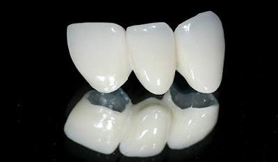 răng sứ có thời gian bảo hành bao lâu -2