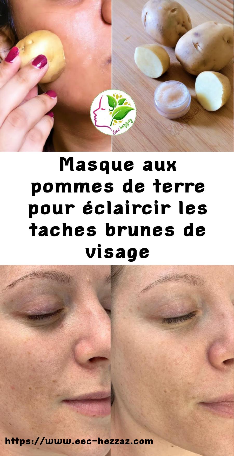 Masque aux pommes de terre pour éclaircir les taches brunes de visage