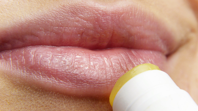 Constantly dry lips? You probably haven't thought of these 3 unusual causes yet