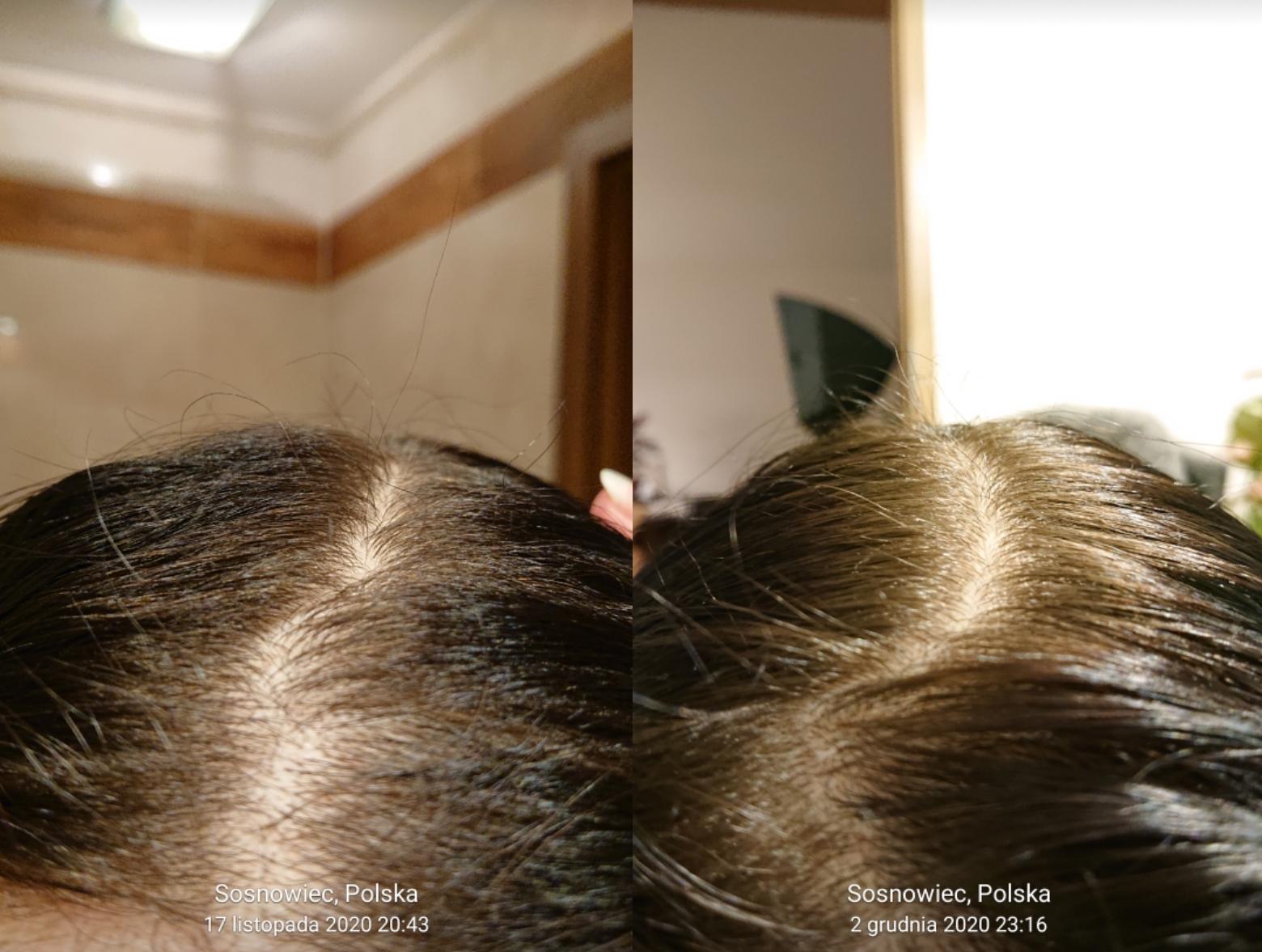 Najlepsze produkty na porost włosów