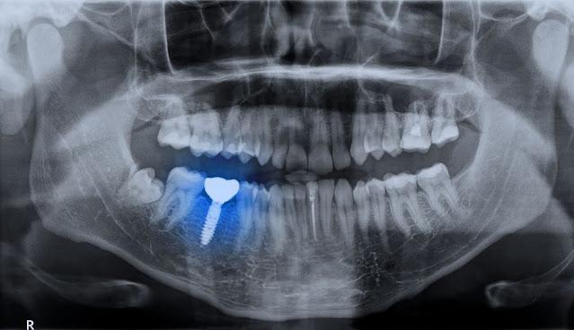 Impianti dentali vs. Protesi: quale è meglio per me?