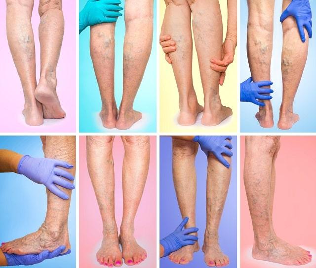signs patient needs vein specialist intervention varicose veins pain heavy legs