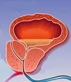 inflamación de la próstata que puede provocar infección