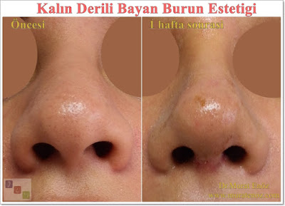 thick skin rhinoplasty in women