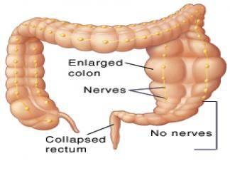 aganglionik bağırsak hirschprung hastalığı kolon örneği, hirschprung hastalığı