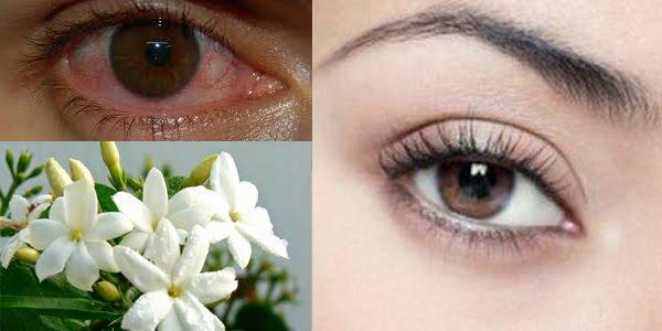 Cara Ampuh Untuk Jernihkan Mata Merahmu, Hanya dengan Bahan Alami Ini