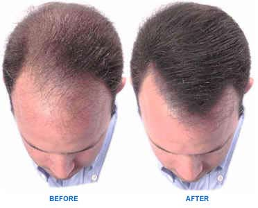 minoxidil before and after