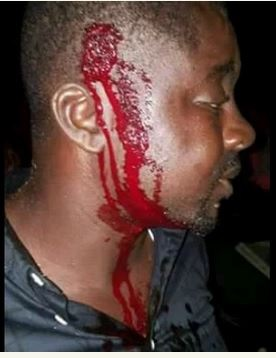 Edo Guber Election: Obaseki Attacked by Vicious Thugs, Personal Assistant Injured (Photos)