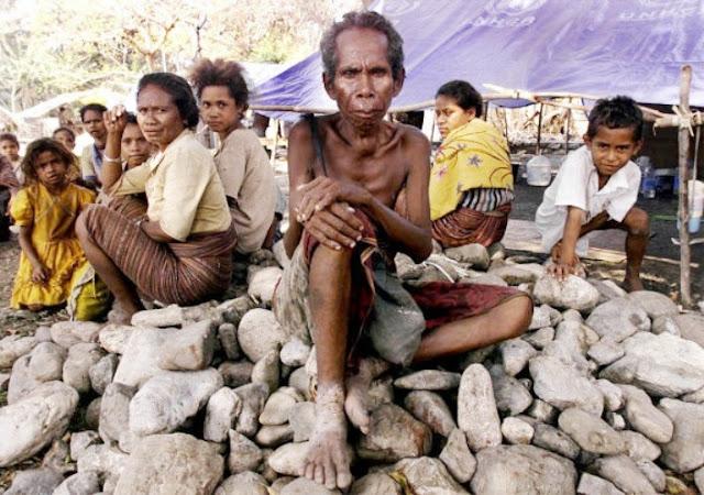 Governu timoroan define kombate kiak hanesan prioridade OJE nian ba tinan 2019