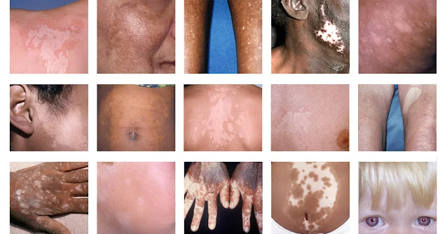 what are the main causes of vitiligo?