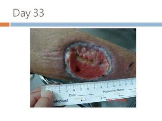 傷口大師: 使用開窗術及局部負壓治療糖尿病腿部潰瘍並骨頭露出
