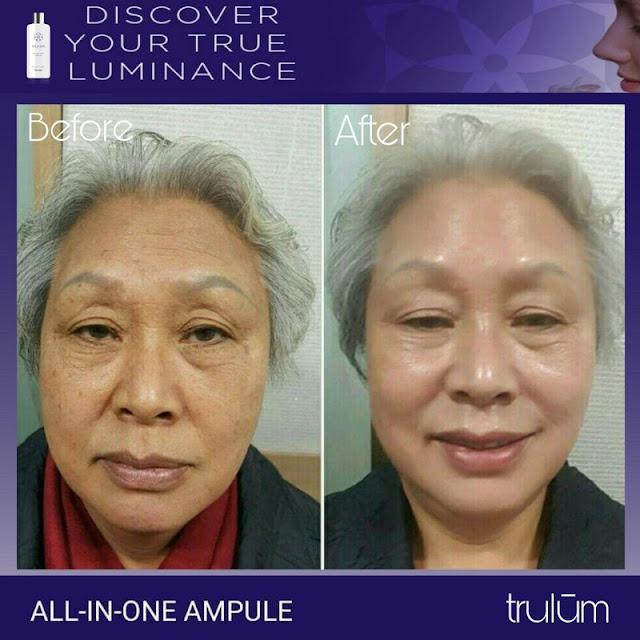 Jual Serum Penghilang Keriput Trulum Skincare Bojong Jaya