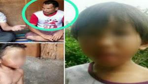 Bocah 9 Tahun Disiksa Ayah Kandung dan Ibu Tiri