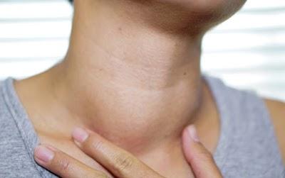 قصور الغدة الدرقية وأعراضها وعلاج قصور الغدة الدرقية