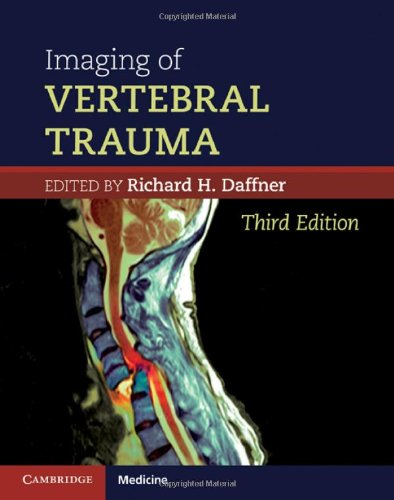 Daffner, Hình ảnh học trong chấn thương cột sống 3e
