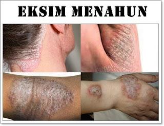 Salep Eksim Original 100 Herbal Mengobati Eksim menahun