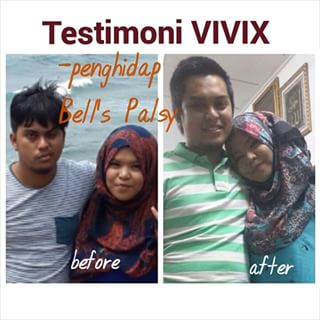 bell's palsy steroid dosing