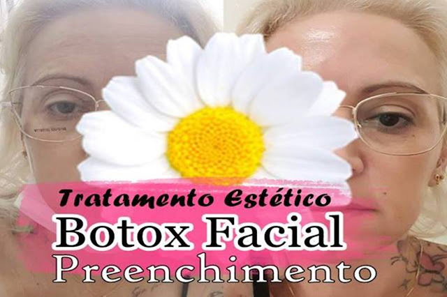 Botox e Preenchimento Facial 1ºDia