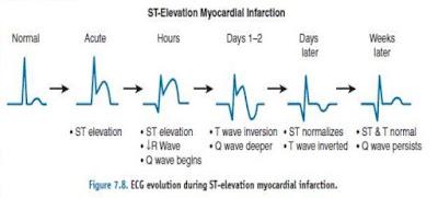 Proses Evolusi Segment ST