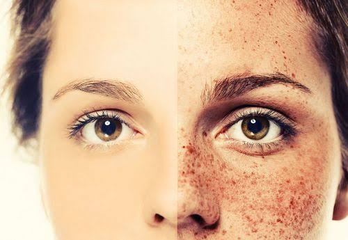 How to get rid of freckles permanently