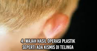 Wajah hasil Operasi Plastik Seperti ada kismis di telinga
