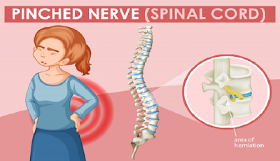 Faktor Penyebab Nyeri Punggung Bagian Bawah ( Low Back Pain )