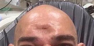 Του έκανε το κρανίο θρύψαλα με μια γονατιά στο μέτωπο, σε αγώνα πολεμικών τεχνών (Photos & Video)