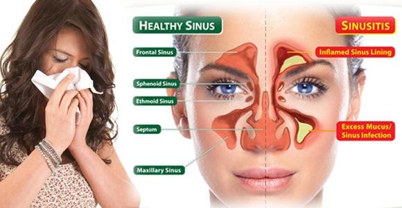 Tips Pengobatan Untuk Mengatasi Sinusitis Secara Alami, Efektif Dan Cepat (Tanpa Operasi)