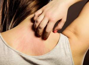 Foods That May Help Those with Skin Allergies