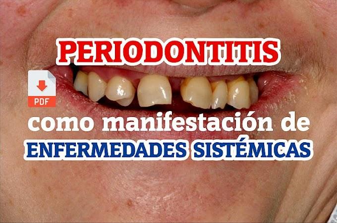 PDF: Periodontitis como manifestación de enfermedades sistémicas