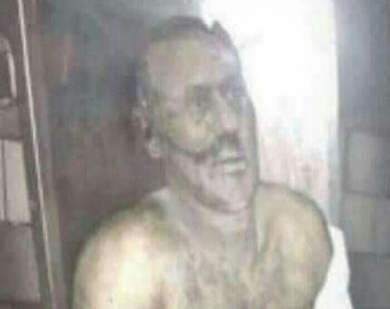 صوره علي عبدالله صالح بعد مقتلة
