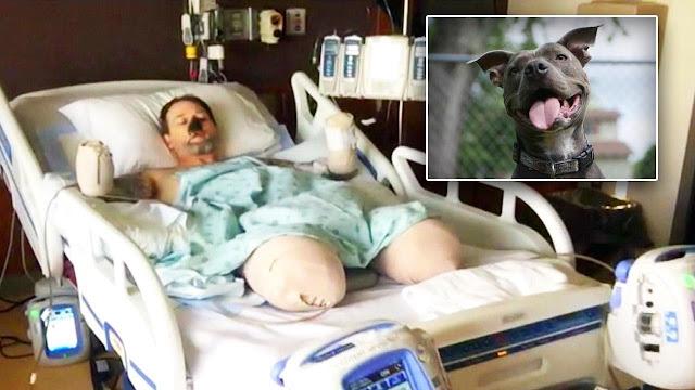 Американец решил оставить собаку из-за которой потерял руки, ноги и нос
