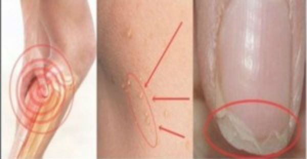 If You Have A Headache, Pimples And Problems With Nails Then You Need To Read This