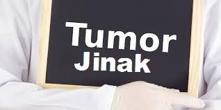 Pengobatan Tumor Jinak Selain Dengan Cara Operasi