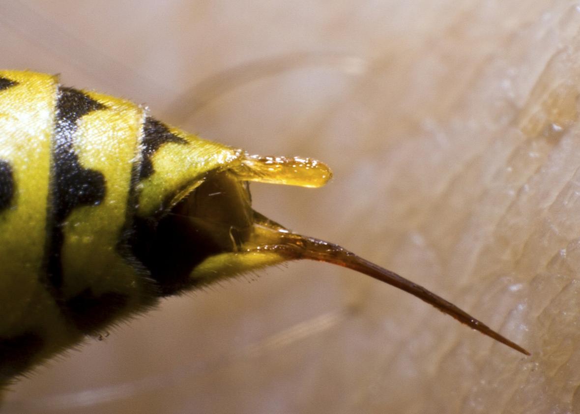 Arı Sokmasına Karşı Ne Yapılmalı Ne iyi Gelir