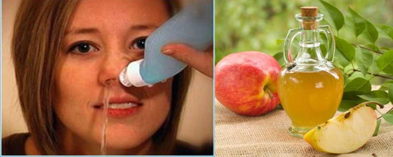 Usages incroyables du vinaigre de cidre de pomme