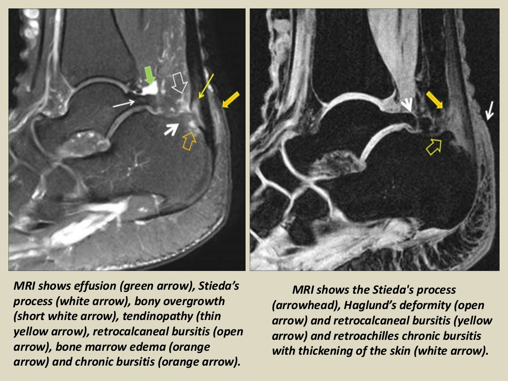 MRI Musculo-Skeletal Section: Bursa of the ankle joint.