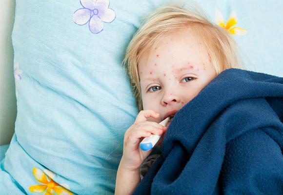 Cara Mengobati Cacar Air Untuk Anak | Obat Tradisional ...