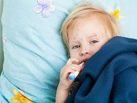 Pengertian, Ciri-Ciri, dan Cara Menghilangkan Penyakit Kulit Cacar