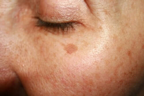 Spots or spots caused by sunlight