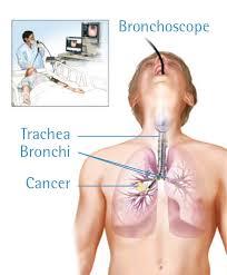 Obat Penghancur Tumor Di Paru-Paru Tradisional